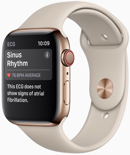 news-iphone-xs-apple-watch