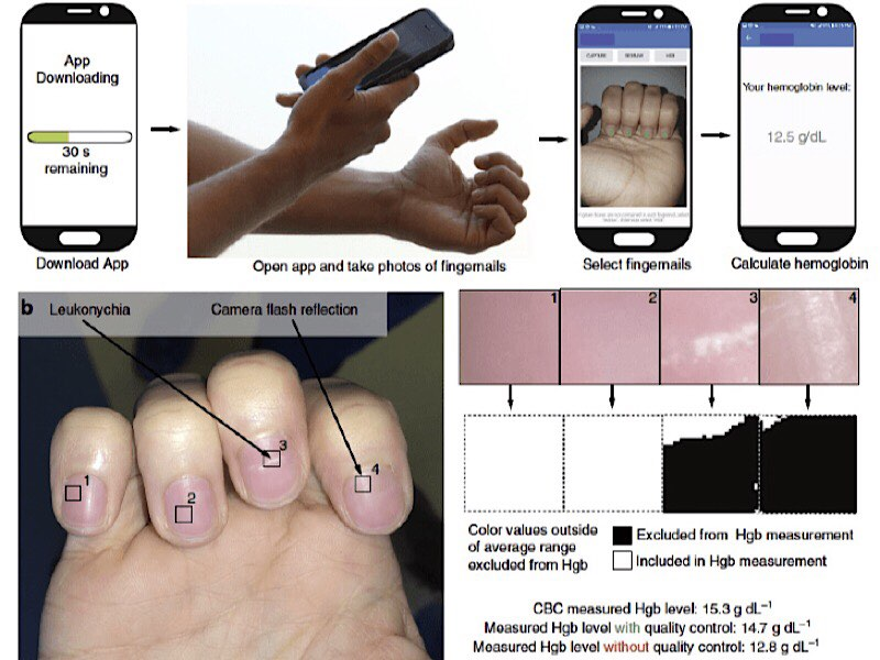 news-anemia-fingernails-diagram