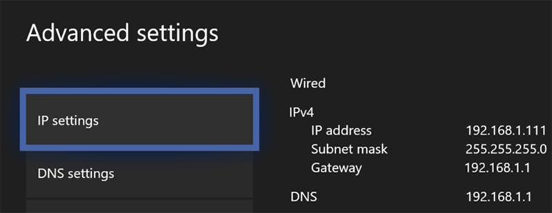 Xbox Network Advanced Settings Menu Details