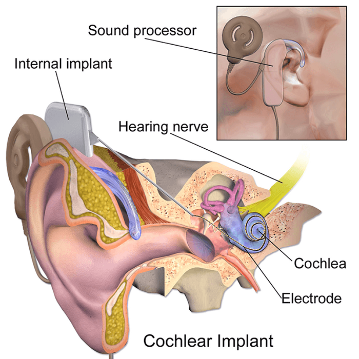 Bci Cochlear Implant