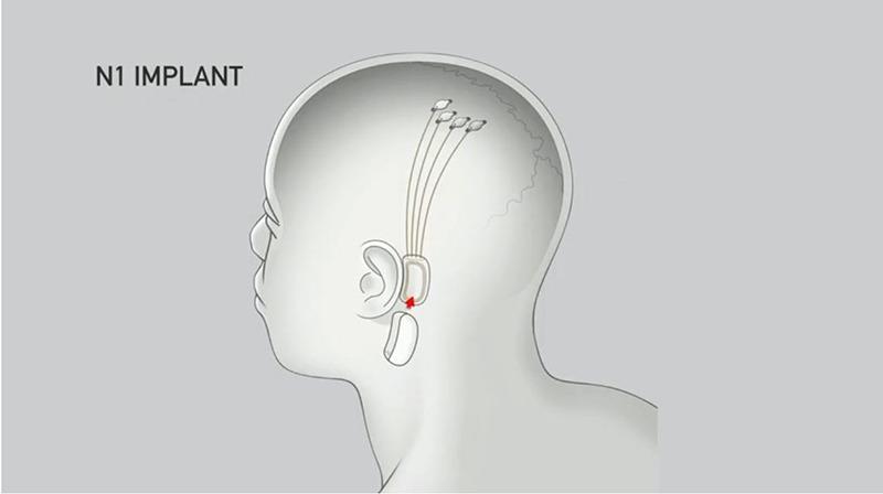 Bci Neuralink Implant